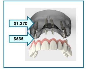 cost-of-implants-for-denture